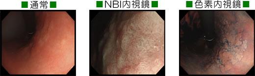 胃がん症例/山科区 内科 がん 治療